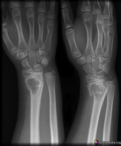 X-ray of a patient's pathological fracture . . .